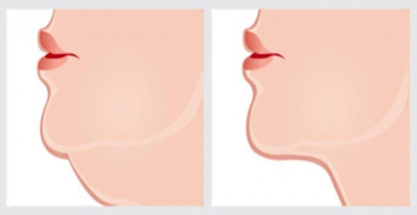 chin-graphic